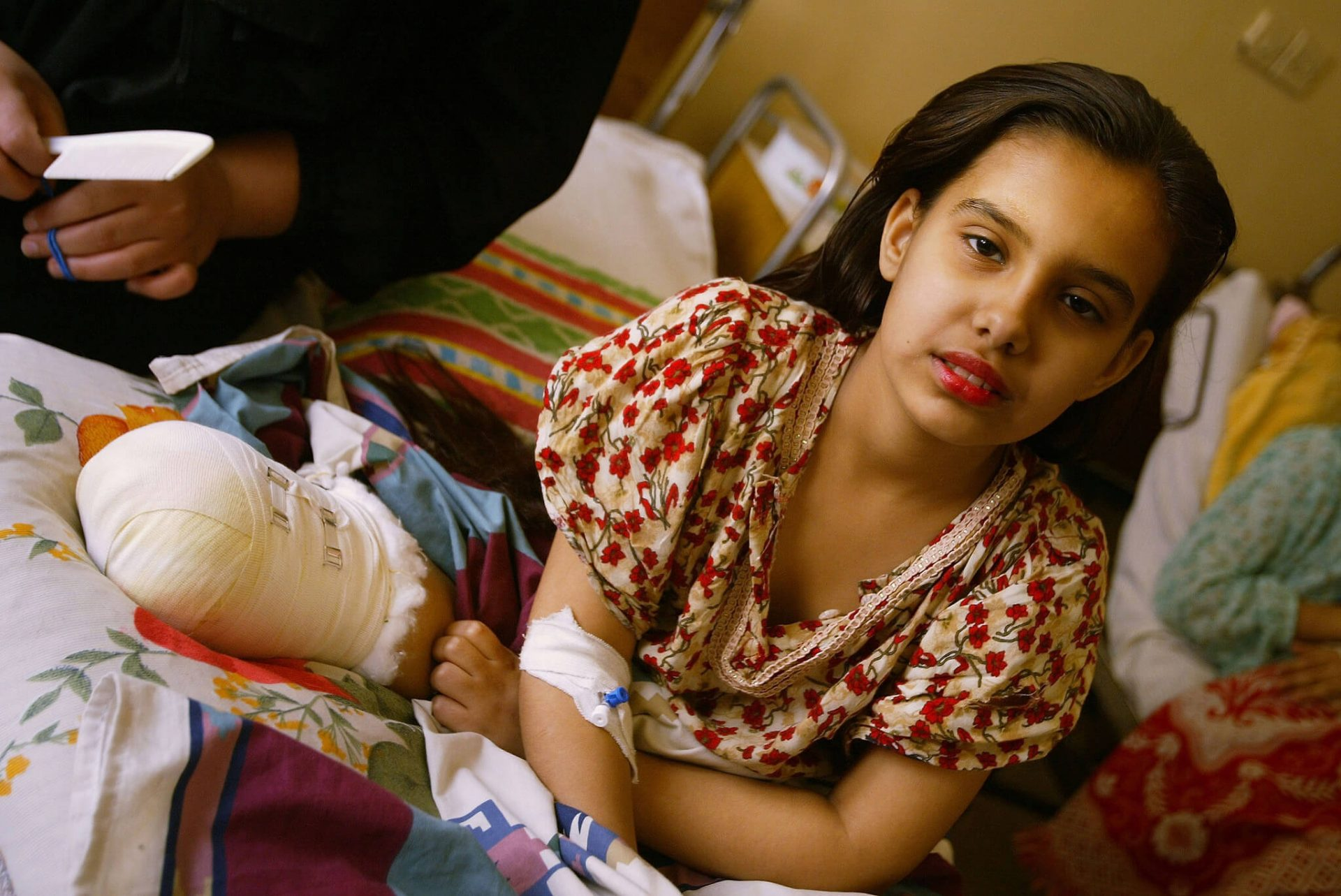 BAGHDAD, IRAQ - APRIL 24: Saf'aa Ahmed, 11, sits with the remainder of her right leg propped up at a hospital April 24, 2003 in Baghdad, Iraq. Saf'aa lost her left leg two weeks ago, from a missile attack on her neighborhood, according to her family. (Photo by Chris Hondros/Getty Images)